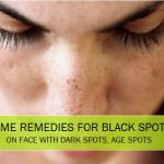 10 Best Home Remedies for Black Spots on the Face, Legs, Hands