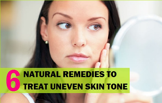 Natural Remedies to Treat Uneven Skin tone