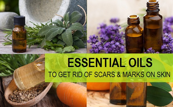 Essential Oils to Heal Scars and Marks on the face