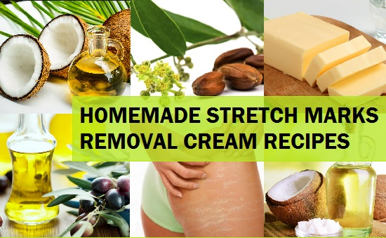Homemade Natural Stretch Marks Removal Cream Recipes