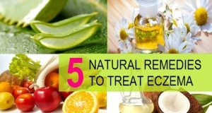 Natural ways to treat Eczema
