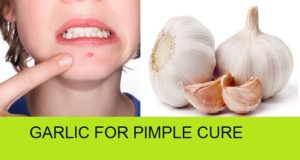 How to use Garlic for Pimples and Acne cure TREATMENT