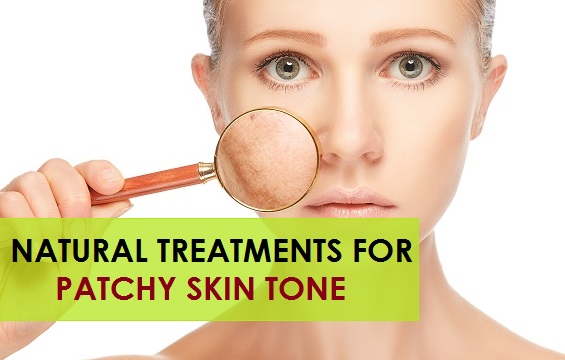 natural treatments for patchy skin tone