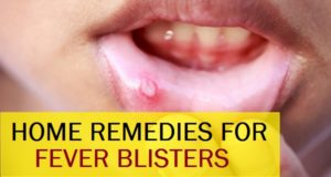 Effective Indian Home Remedies to cure Fever Blisters