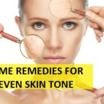 How to treat Uneven Skin Tone on Face and Body