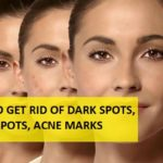 How to Get Rid of Dark Spots, Black Spots on Face from Acne, Pimples and Scars
