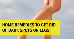 home remedies for dark spots for legs